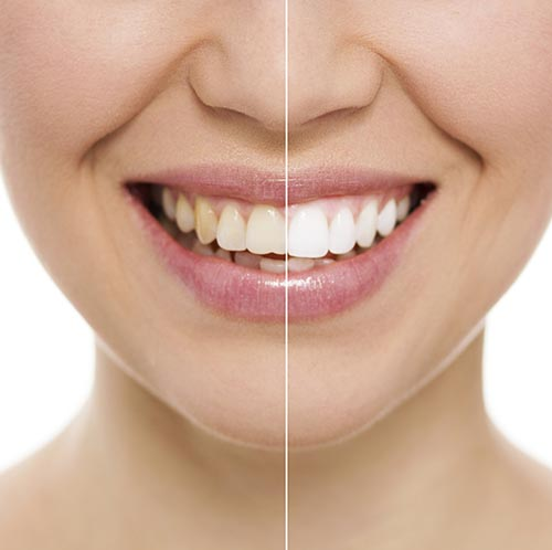 Teeth Whitening at DeWire Dental
